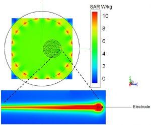 SAR (1-g) levels